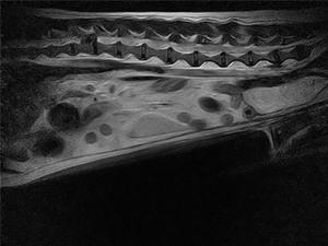 MRI診察風景
