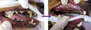 プロービングの結果、多くの歯が抜歯となりました